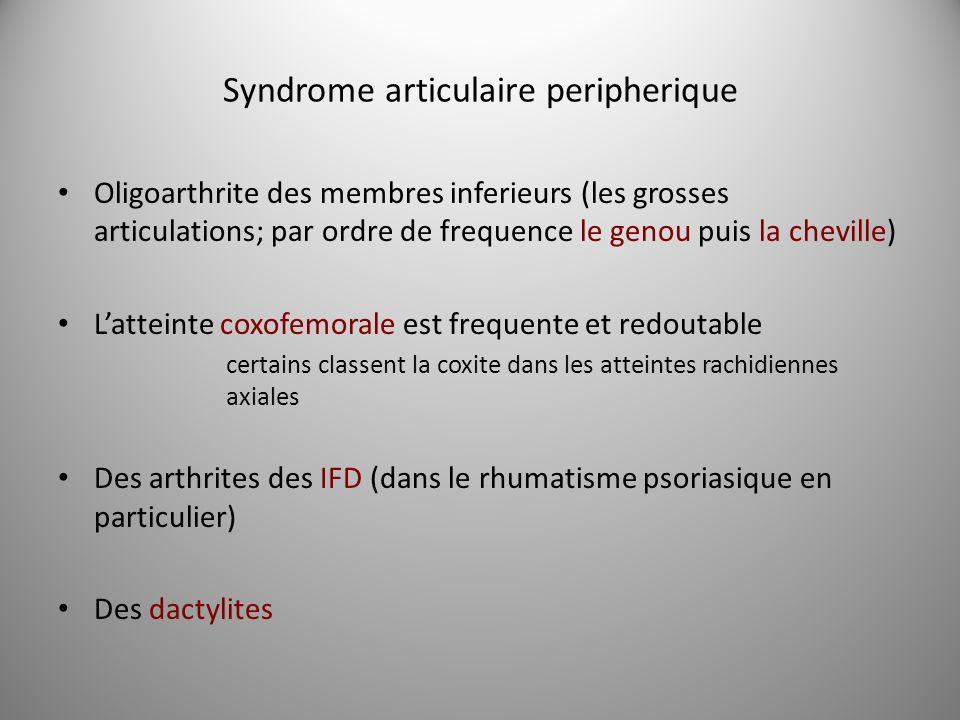 Syndrome articulaire peripherique Oligoarthrite des membres inferieurs (les grosses articulations; par ordre de frequence le genou puis la cheville) L