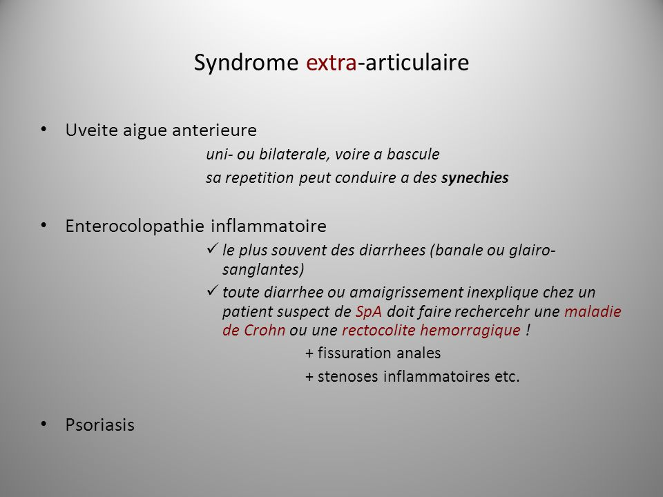 Syndrome extra-articulaire Uveite aigue anterieure uni- ou bilaterale, voire a bascule sa repetition peut conduire a des synechies Enterocolopathie in