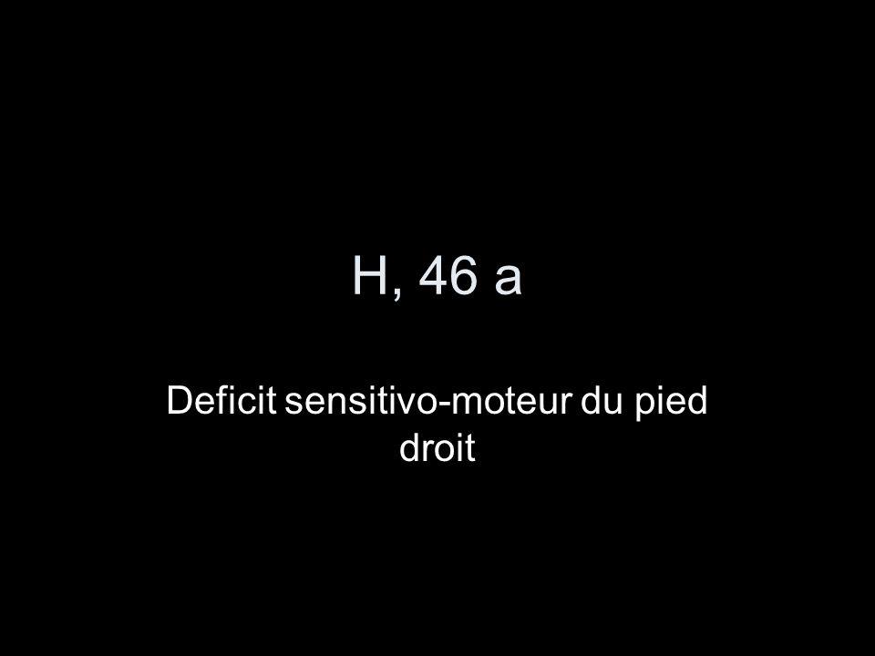 H, 46 a Deficit sensitivo-moteur du pied droit