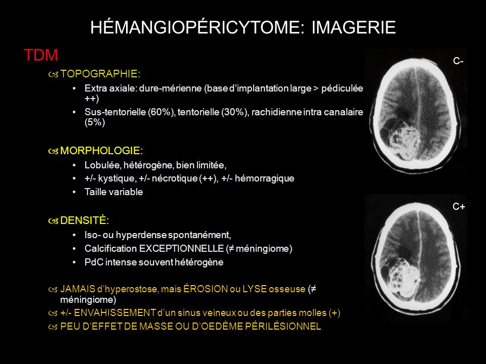 HÉMANGIOPÉRICYTOME: IMAGERIE TDM –TOPOGRAPHIE: Extra axiale: dure-mérienne (base dimplantation large > pédiculée ++) Sus-tentorielle (60%), tentoriell