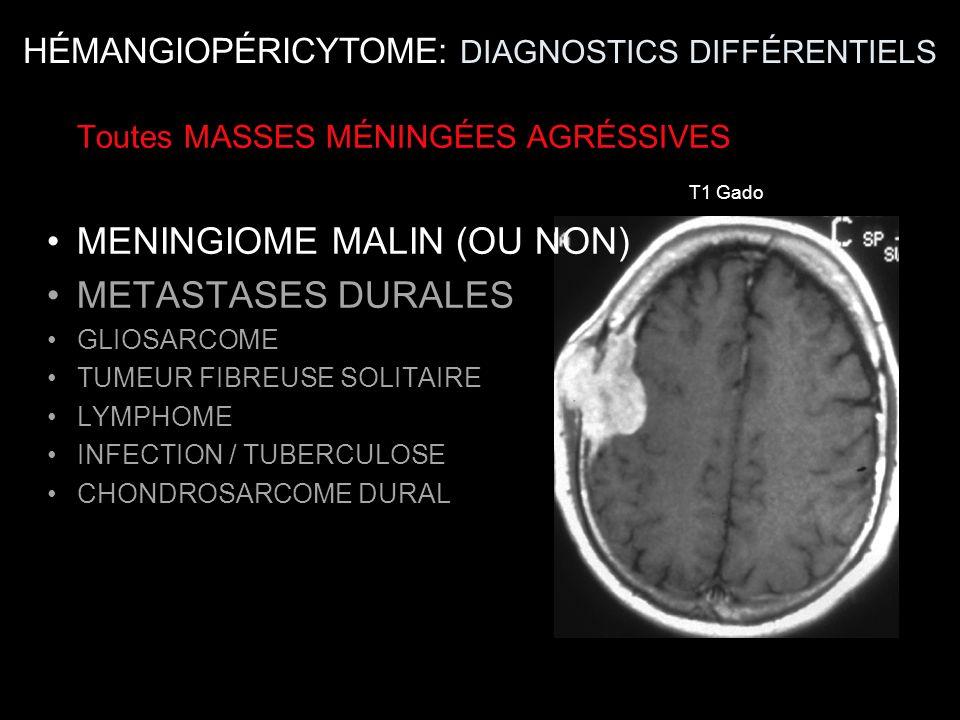 T1 Gado Toutes MASSES MÉNINGÉES AGRÉSSIVES MENINGIOME MALIN (OU NON) METASTASES DURALES GLIOSARCOME TUMEUR FIBREUSE SOLITAIRE LYMPHOME INFECTION / TUB
