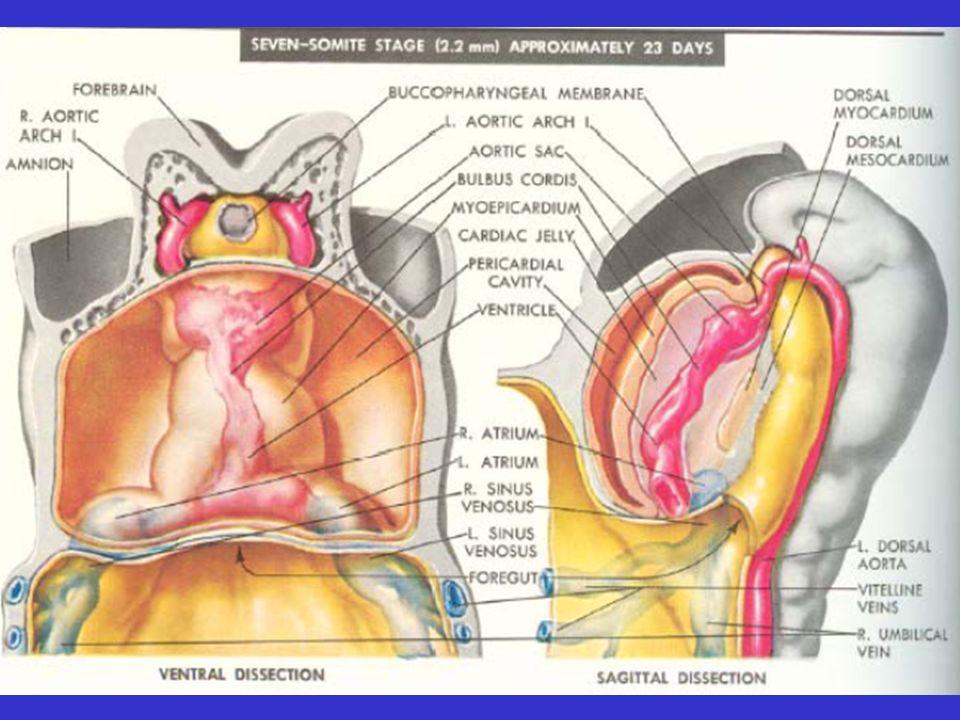 Les patients atteints dune communication interauriculaire de type sinus venosus ou ostium secundum decedent rarement avant la cinquantaine.
