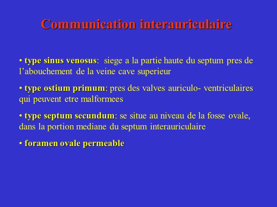 Communication interauriculaire type sinus venosus type sinus venosus: siege a la partie haute du septum pres de labouchement de la veine cave superieu