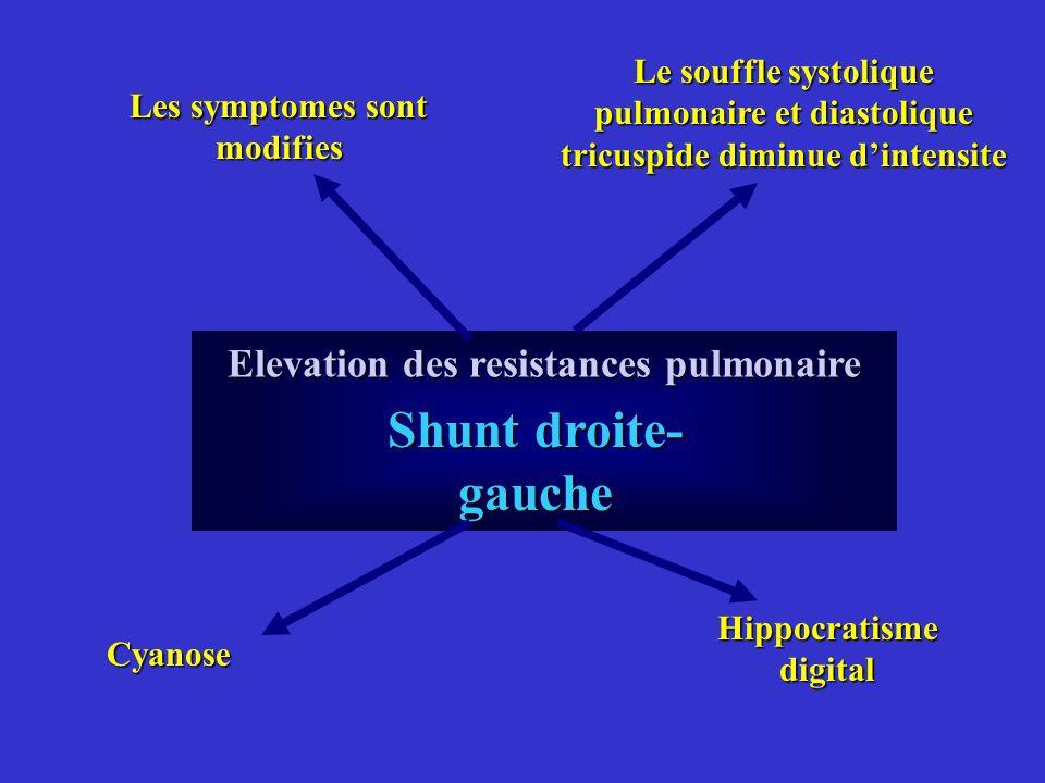 Elevation des resistances pulmonaire Les symptomes sont modifies Le souffle systolique pulmonaire et diastolique tricuspide diminue dintensite Shunt d