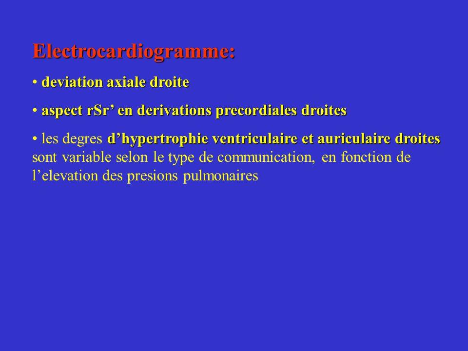 Electrocardiogramme: deviation axiale droite aspect rSr en derivations precordiales droites dhypertrophie ventriculaire et auriculaire droites les deg
