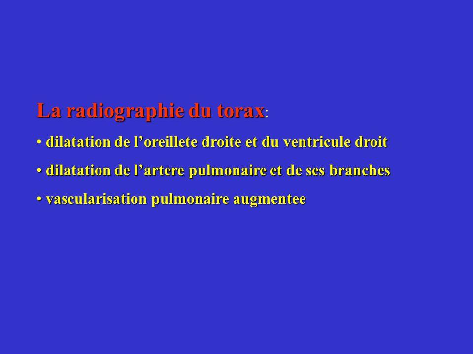 La radiographie du torax La radiographie du torax : dilatation de loreillete droite et du ventricule droit dilatation de lartere pulmonaire et de ses
