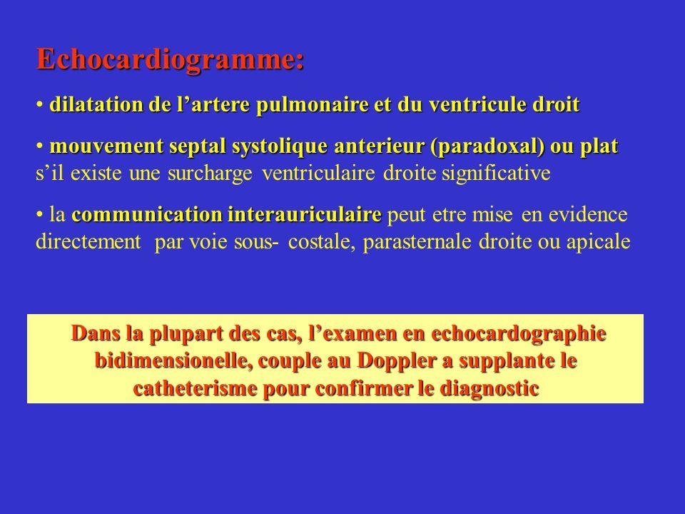 Echocardiogramme: dilatation de lartere pulmonaire et du ventricule droit mouvement septal systolique anterieur (paradoxal) ou plat mouvement septal s