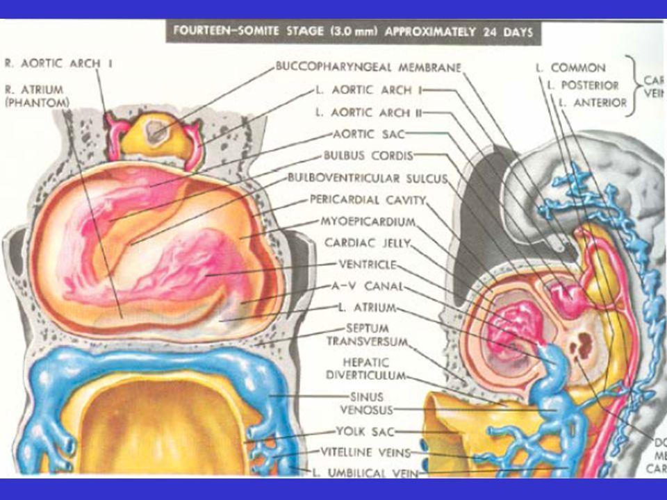 Elevation des resistances pulmonaire Les symptomes sont modifies Le souffle systolique pulmonaire et diastolique tricuspide diminue dintensite Shunt droite- gauche Cyanose Hippocratisme digital