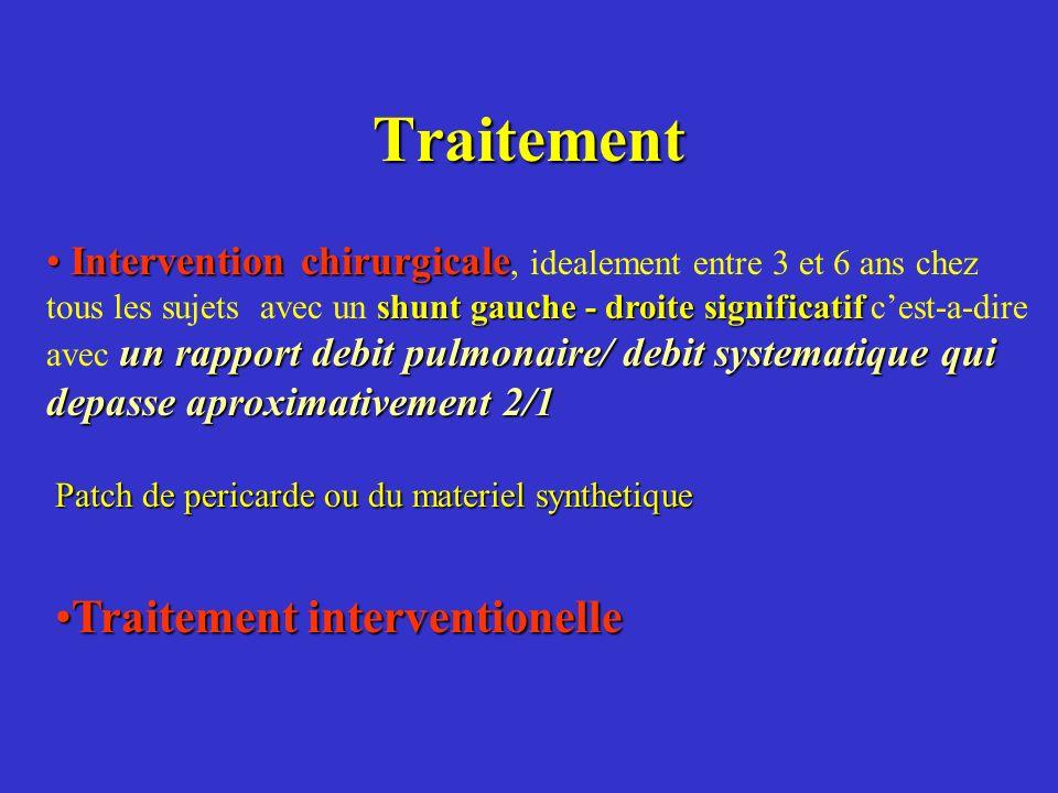 Traitement Intervention chirurgicale shunt gauche - droite significatif un rapport debit pulmonaire/ debit systematique qui depasse aproximativement 2