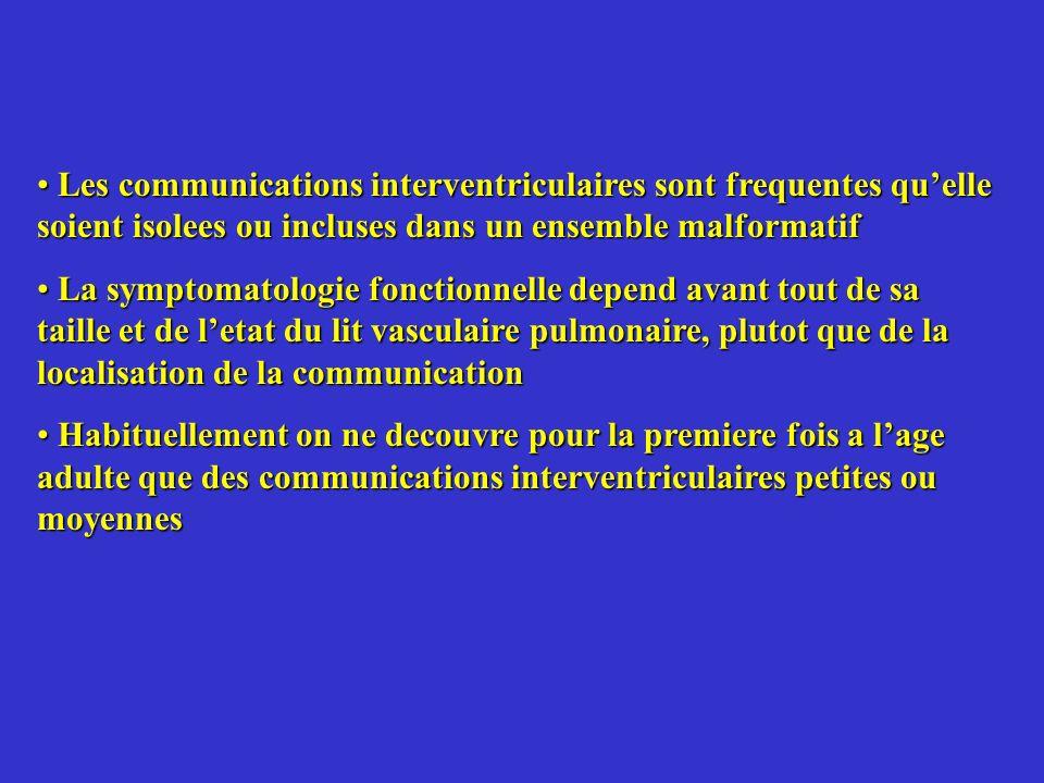 Les communications interventriculaires sont frequentes quelle soient isolees ou incluses dans un ensemble malformatif Les communications interventricu