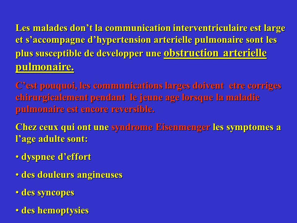 Les malades dont la communication interventriculaire est large et saccompagne dhypertension arterielle pulmonaire sont les plus susceptible de develop