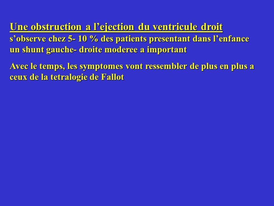 Une obstruction a lejection du ventricule droit sobserve chez 5- 10 % des patients presentant dans lenfance un shunt gauche- droite moderee a importan