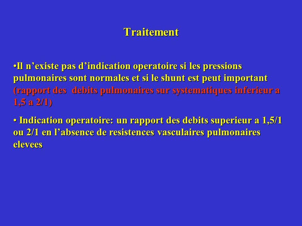Traitement Il nexiste pas dindication operatoire si les pressions pulmonaires sont normales et si le shunt est peut important (rapport des debits pulm