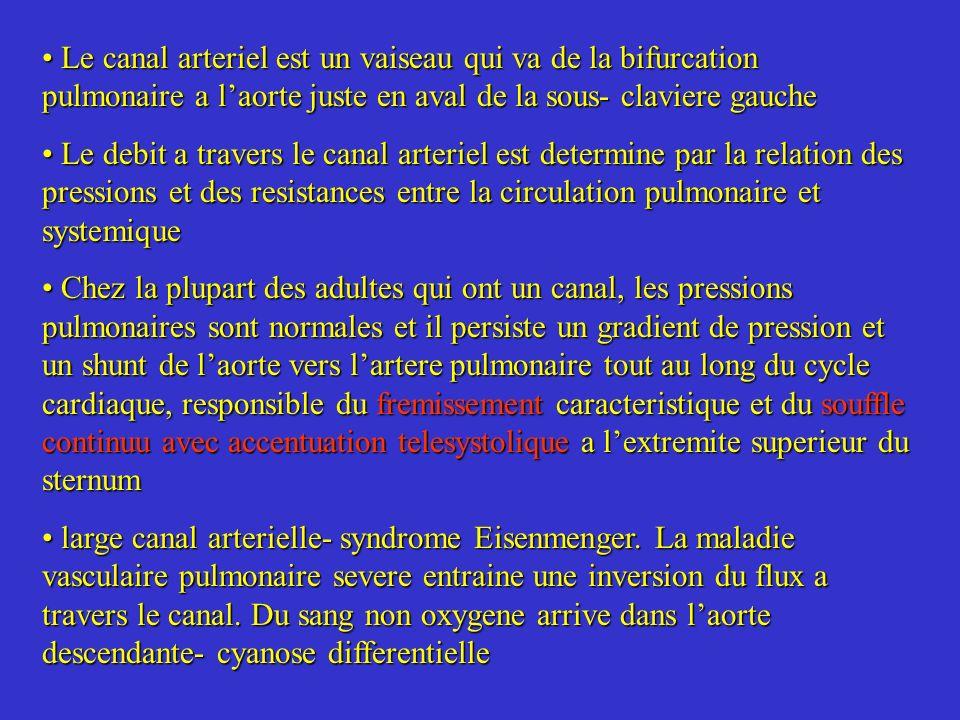 Le canal arteriel est un vaiseau qui va de la bifurcation pulmonaire a laorte juste en aval de la sous- claviere gauche Le canal arteriel est un vaise