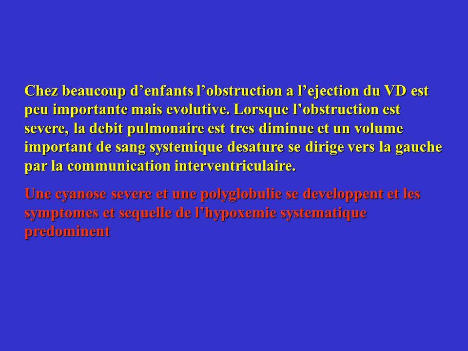 Chez beaucoup denfants lobstruction a lejection du VD est peu importante mais evolutive. Lorsque lobstruction est severe, la debit pulmonaire est tres