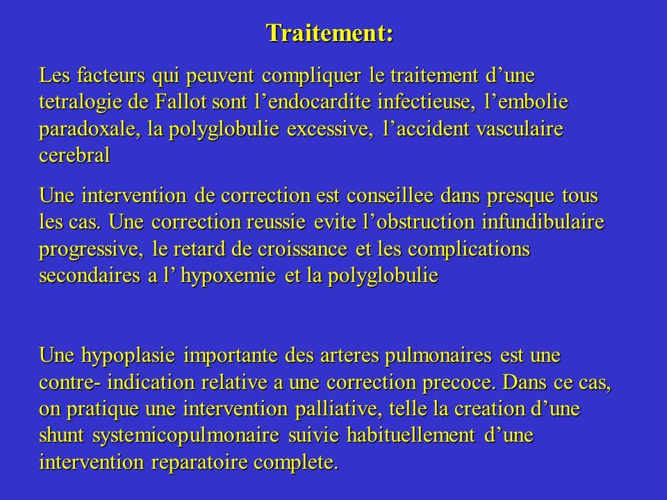 Traitement: Les facteurs qui peuvent compliquer le traitement dune tetralogie de Fallot sont lendocardite infectieuse, lembolie paradoxale, la polyglo