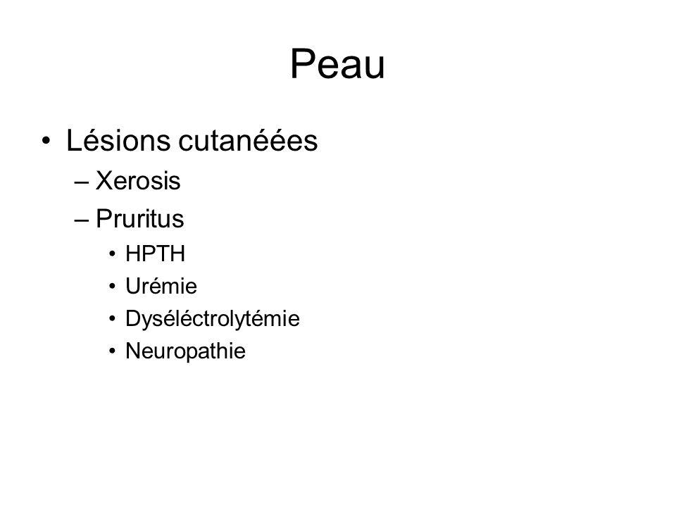 Peau Lésions cutanéées –Xerosis –Pruritus HPTH Urémie Dyséléctrolytémie Neuropathie