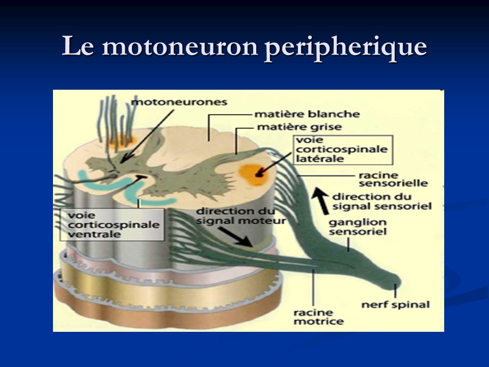 Deficit moteur Monoparésie/monoplegié ( deficit moteur dun membre) Monoparésie/monoplegié ( deficit moteur dun membre) Hemiparésie/ hemiplegie ( deficit hemicorporel) Hemiparésie/ hemiplegie ( deficit hemicorporel) Paraparésie/paraplegie ( deficit de deux memebres inferieures) Paraparésie/paraplegie ( deficit de deux memebres inferieures) Diparésie /diplegie ( deficit de deux membres superieures ou dautres nerfs cranienes bilateraux) Diparésie /diplegie ( deficit de deux membres superieures ou dautres nerfs cranienes bilateraux) Tetraparésie : une atteinte des quatre membres Tetraparésie : une atteinte des quatre membres