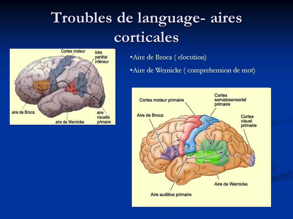 Troubles de language- aires corticales Aire de Broca ( elocution) Aire de Wernicke ( comprehension de mot)
