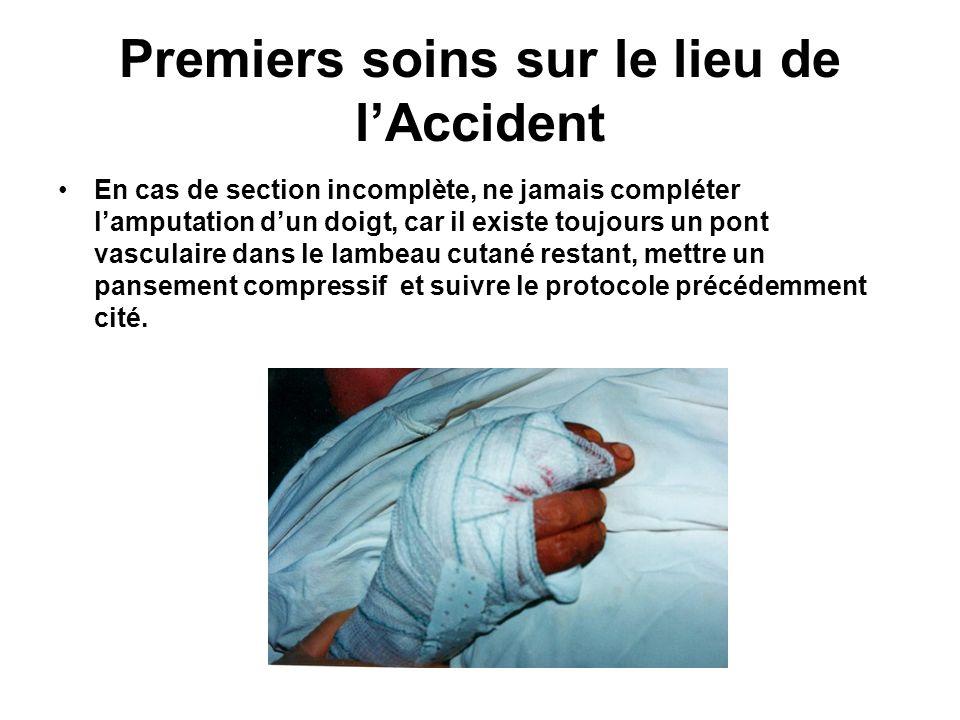 Premiers soins sur le lieu de lAccident En cas de section incomplète, ne jamais compléter lamputation dun doigt, car il existe toujours un pont vascul