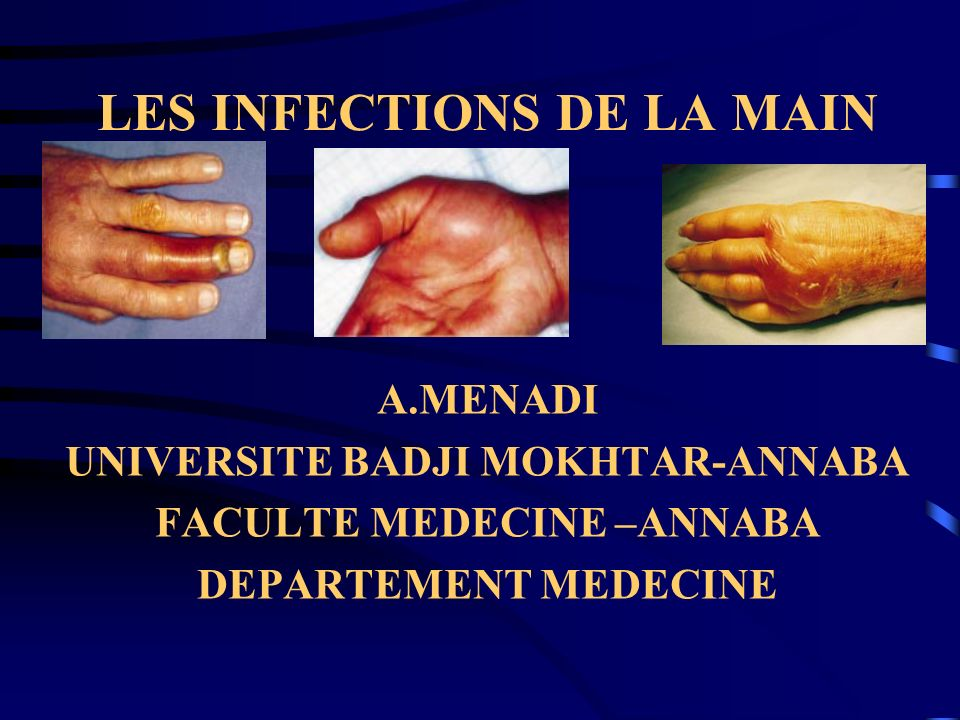 LES INFECTIONS DE LA MAIN A.MENADI UNIVERSITE BADJI MOKHTAR-ANNABA FACULTE MEDECINE –ANNABA DEPARTEMENT MEDECINE