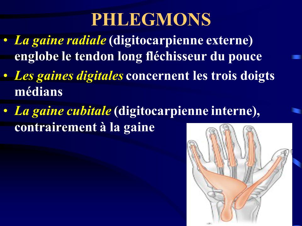 PHLEGMONS La gaine radiale (digitocarpienne externe) englobe le tendon long fléchisseur du pouce Les gaines digitales concernent les trois doigts médi