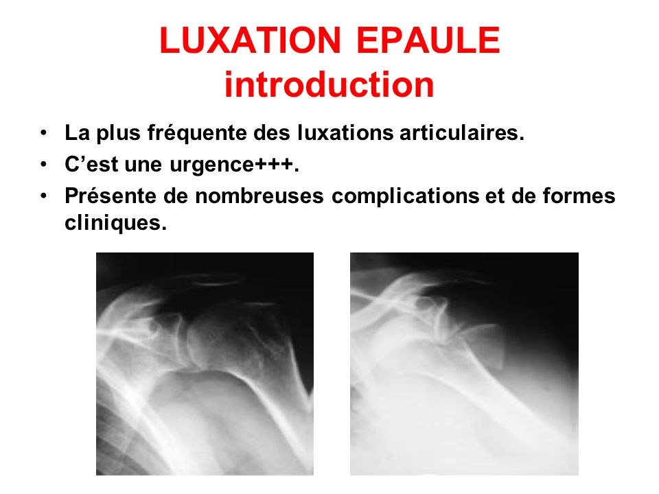 LUXATION EPAULE introduction La plus fréquente des luxations articulaires. Cest une urgence+++. Présente de nombreuses complications et de formes clin