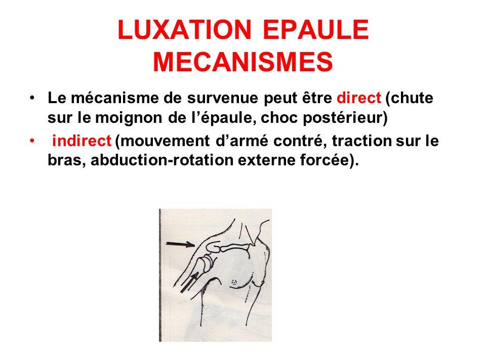 LUXATION EPAULE MECANISMES Le mécanisme de survenue peut être direct (chute sur le moignon de lépaule, choc postérieur) indirect (mouvement darmé cont
