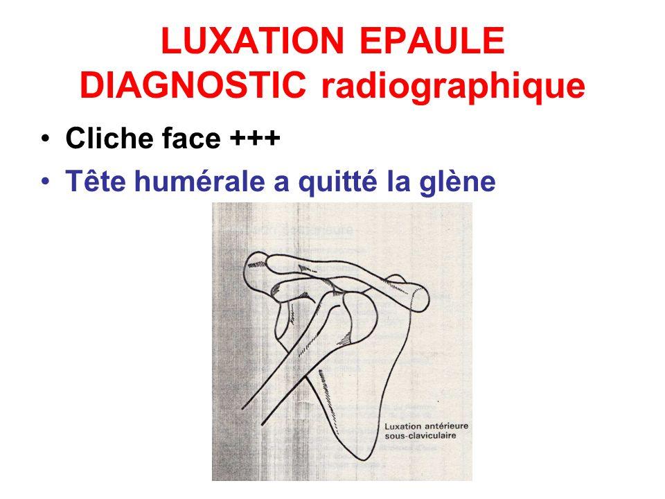 LUXATION EPAULE DIAGNOSTIC radiographique Cliche face +++ Tête humérale a quitté la glène