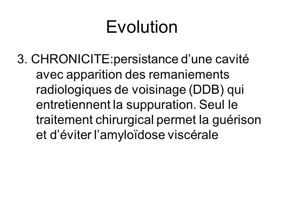 Evolution 3. CHRONICITE:persistance dune cavité avec apparition des remaniements radiologiques de voisinage (DDB) qui entretiennent la suppuration. Se