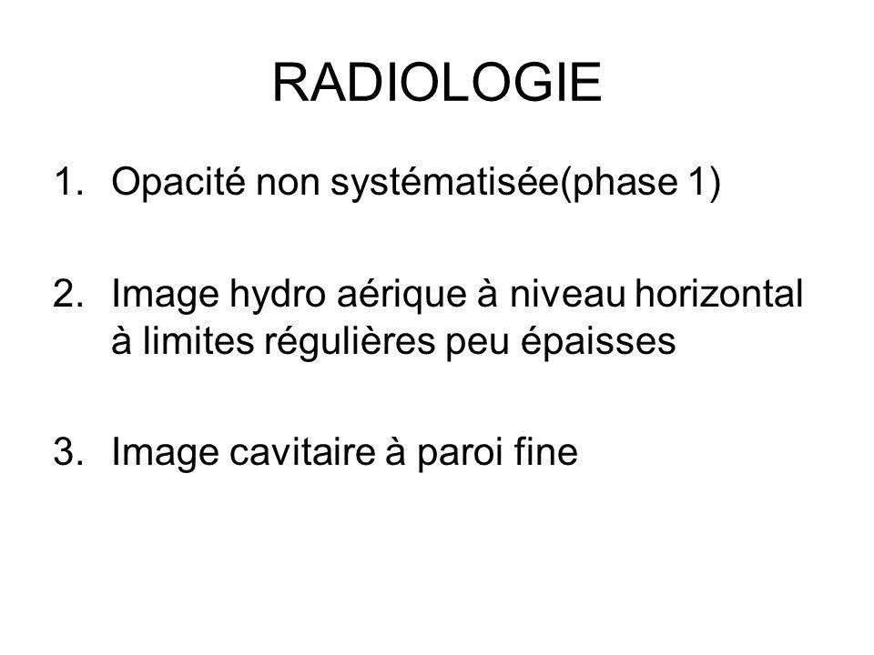 RADIOLOGIE 1.Opacité non systématisée(phase 1) 2.Image hydro aérique à niveau horizontal à limites régulières peu épaisses 3.Image cavitaire à paroi f