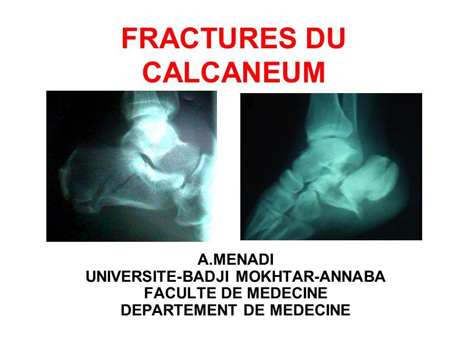 INTRODUCTION Les fractures du calcanéum sont définies comme une solution de continuité de los calcanéen.