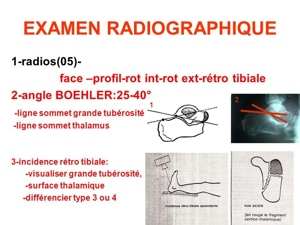 EXAMEN RADIOGRAPHIQUE 1-radios(05)- face –profil-rot int-rot ext-rétro tibiale 2-angle BOEHLER:25-40° -ligne sommet grande tubérosité -ligne sommet th