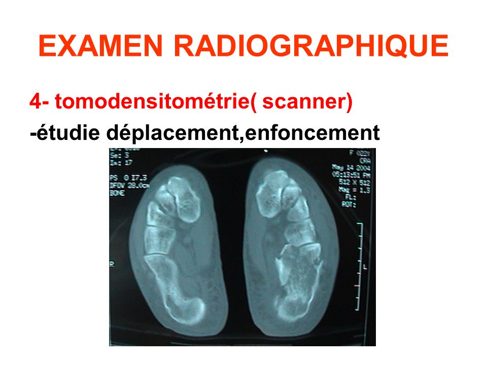 EXAMEN RADIOGRAPHIQUE 4- tomodensitométrie( scanner) -étudie déplacement,enfoncement