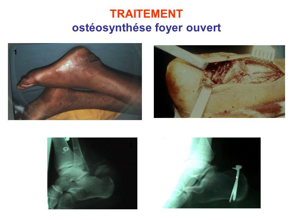 TRAITEMENT ostéosynthése foyer ouvert 12 3 4
