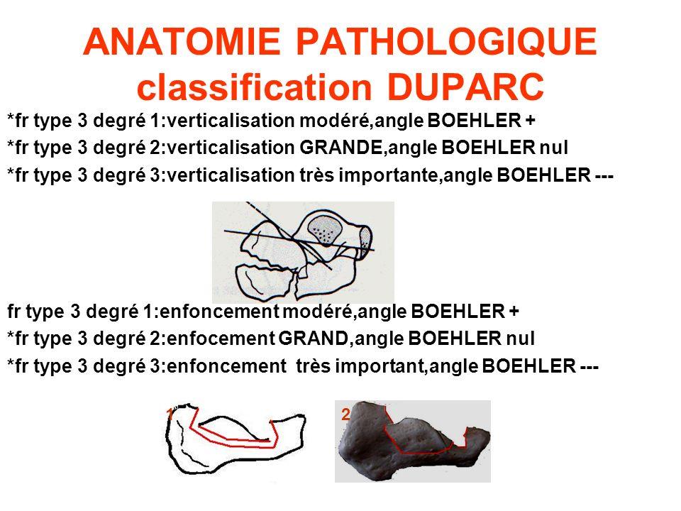 ANATOMIE PATHOLOGIQUE classification DUPARC *fr type 3 degré 1:verticalisation modéré,angle BOEHLER + *fr type 3 degré 2:verticalisation GRANDE,angle