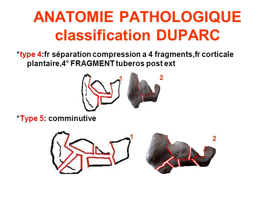 ANATOMIE PATHOLOGIQUE classification DUPARC *type 4:fr séparation compression a 4 fragments,fr corticale plantaire,4° FRAGMENT tuberos post ext *Type