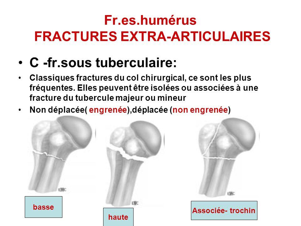 Fr.es.humérus FRACTURES EXTRA-ARTICULAIRES C -fr.sous tuberculaire: Classiques fractures du col chirurgical, ce sont les plus fréquentes. Elles peuven