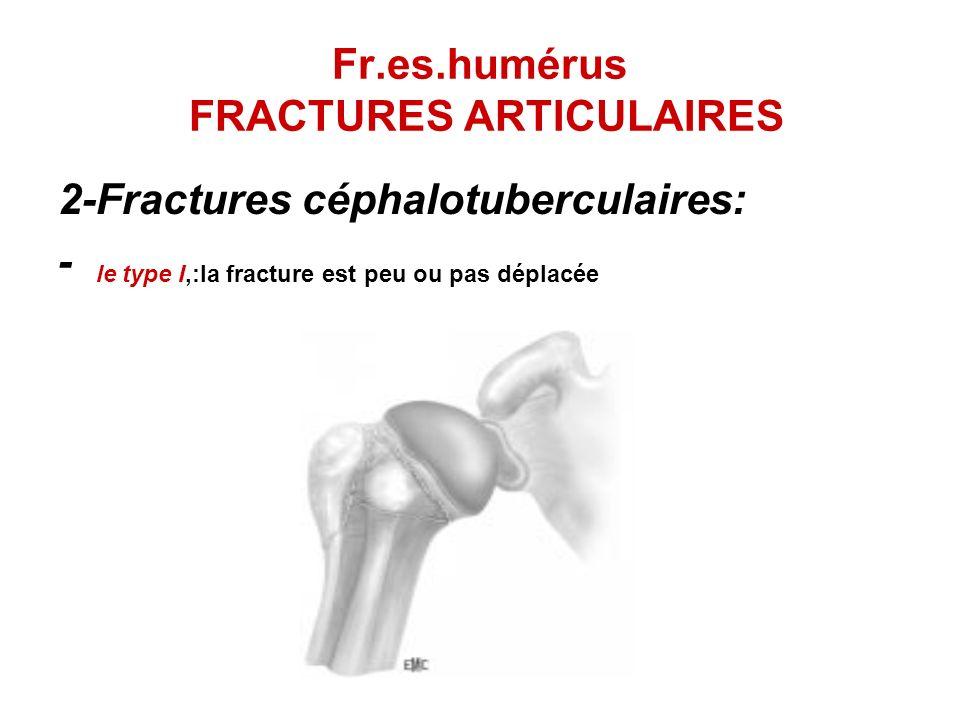 Fr.es.humérus FRACTURES ARTICULAIRES 2-Fractures céphalotuberculaires: - le type I,:la fracture est peu ou pas déplacée