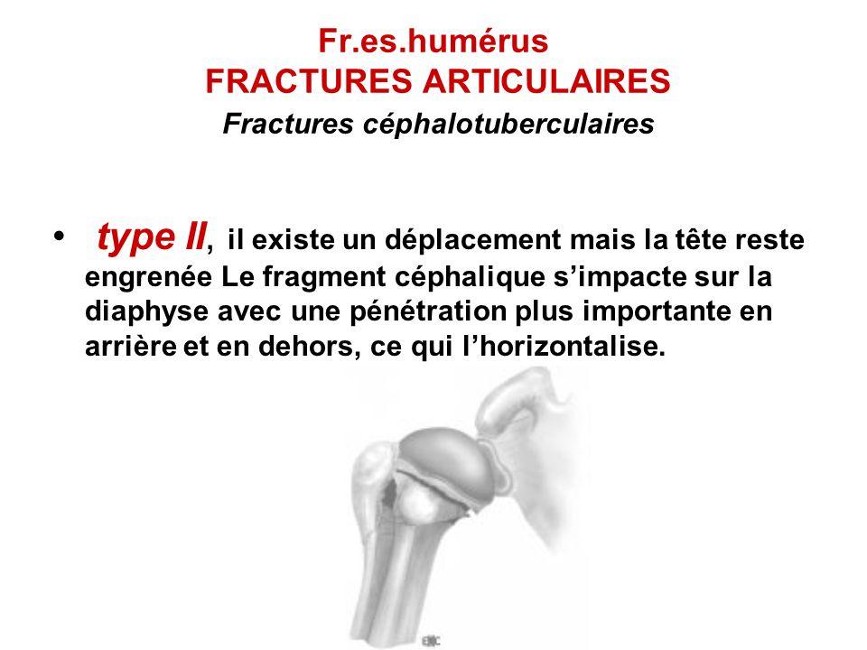 Fr.es.humérus FRACTURES ARTICULAIRES Fractures céphalotuberculaires type II, il existe un déplacement mais la tête reste engrenée Le fragment céphaliq