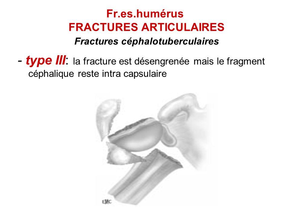 Fr.es.humérus FRACTURES ARTICULAIRES Fractures céphalotuberculaires - type III: la fracture est désengrenée mais le fragment céphalique reste intra ca