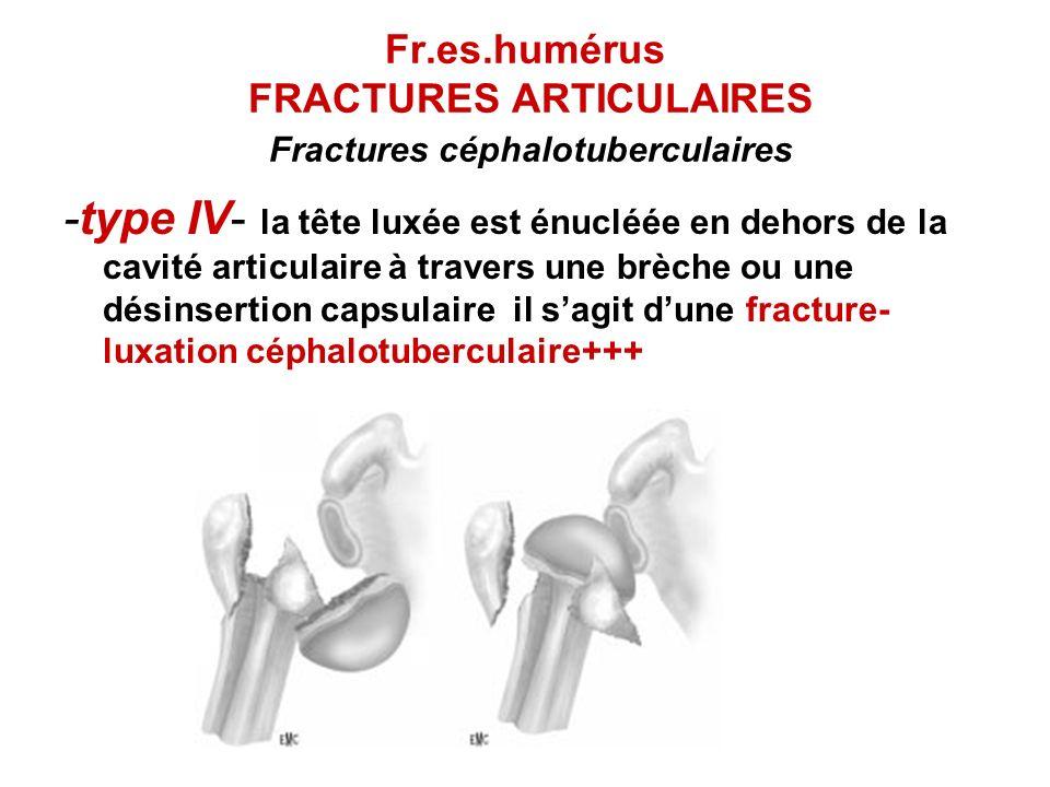 Fr.es.humérus FRACTURES ARTICULAIRES Fractures céphalotuberculaires -type IV- la tête luxée est énucléée en dehors de la cavité articulaire à travers