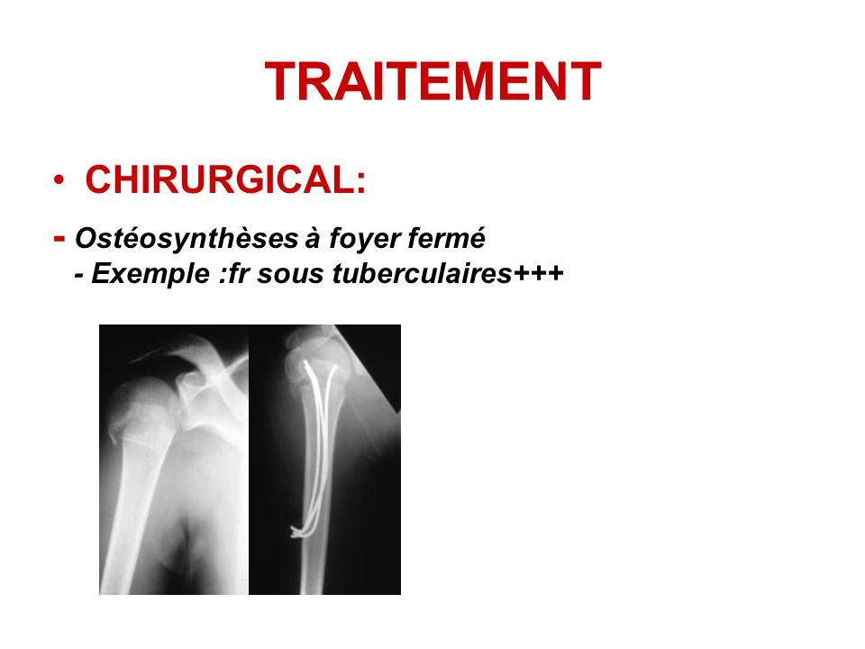 TRAITEMENT CHIRURGICAL: - Ostéosynthèses à foyer fermé - Exemple :fr sous tuberculaires+++