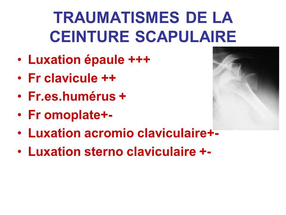 TRAUMATISMES DE LA CEINTURE SCAPULAIRE Luxation épaule +++ Fr clavicule ++ Fr.es.humérus + Fr omoplate+- Luxation acromio claviculaire+- Luxation ster