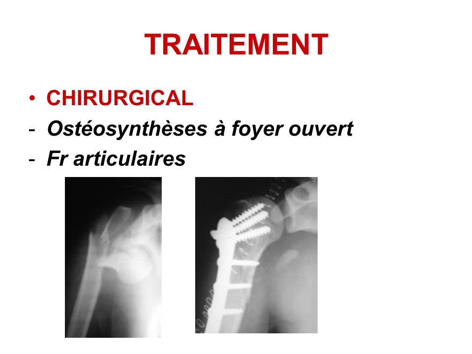 CHIRURGICAL -Ostéosynthèses à foyer ouvert -Fr articulaires TRAITEMENT