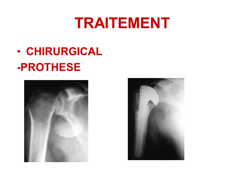 CHIRURGICAL -PROTHESE