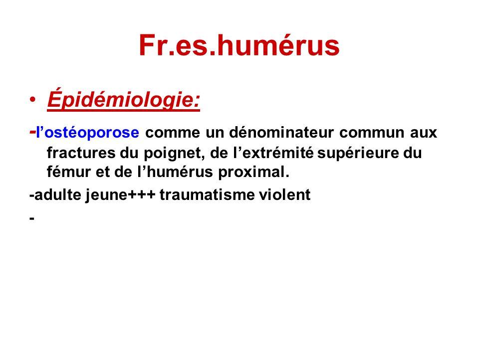 Fr.es.humérus FRACTURES EXTRA-ARTICULAIRES Extracapsulaires, elles comprennent les fractures des tubercules et les fractures sous-tuberculaires.