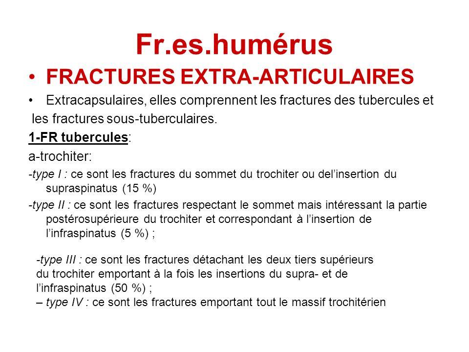Fr.es.humérus FRACTURES EXTRA-ARTICULAIRES Extracapsulaires, elles comprennent les fractures des tubercules et les fractures sous-tuberculaires. 1-FR