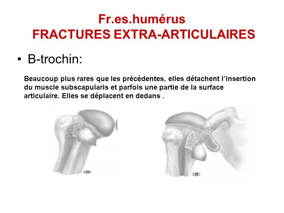 Fr.es.humérus FRACTURES EXTRA-ARTICULAIRES B-trochin: Beaucoup plus rares que les précédentes, elles détachent linsertion du muscle subscapularis et p
