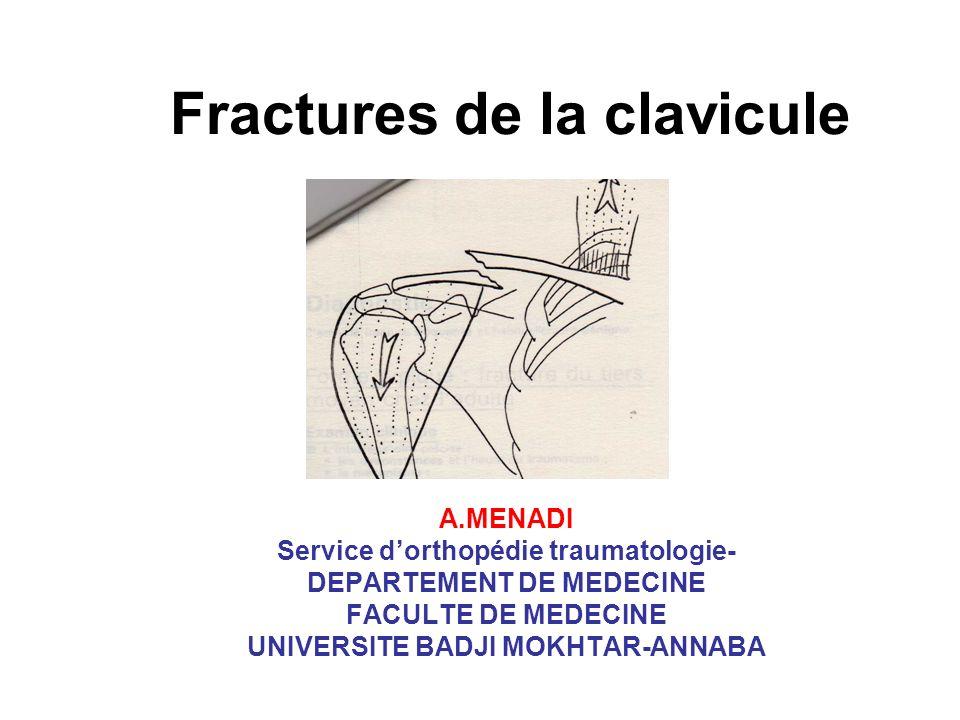 Fractures de la clavicule A.MENADI Service dorthopédie traumatologie- DEPARTEMENT DE MEDECINE FACULTE DE MEDECINE UNIVERSITE BADJI MOKHTAR-ANNABA